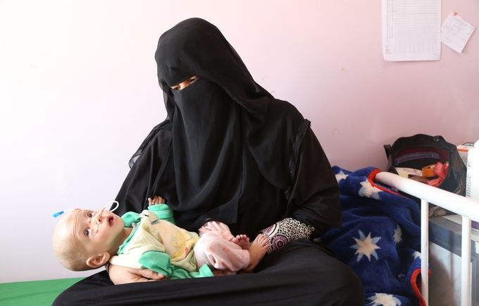 Some 1.1 million pregnant and lactating women are acutely malnourished, heightening the risk of life-threatening complications during pregnancy and labour. © UNFPA Yemen